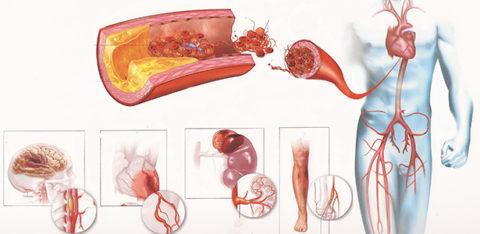 Схематическое изображение патологий, вызванных повышение уровня холестерина в крови