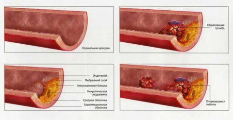 Строение здорового и пораженного атеросклерозом сосудов