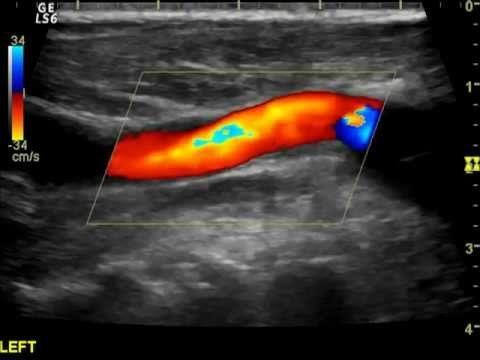 Исследование вен дуплексным ангиосканированием