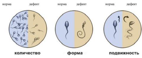 Критерии оценки спермы