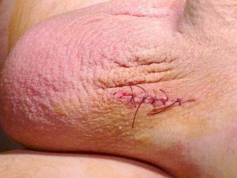 Шов после удаления варикоза на семенных венах
