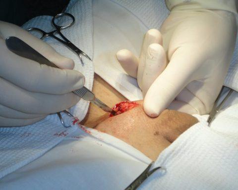 Удаление варикоцеле по методике Мармара