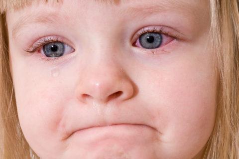 Покраснение склер глаз у ребенка