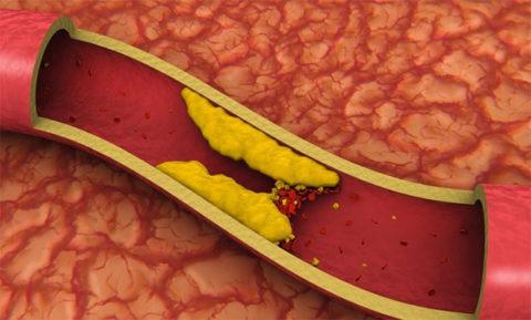 Процесс образования холестериновой бляшки и её закупорка тромбом