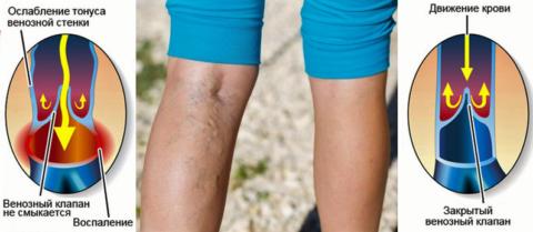 Сосудистый звёздочки, варикозных узлы и выпирающие вены причиняют косметические неудобства