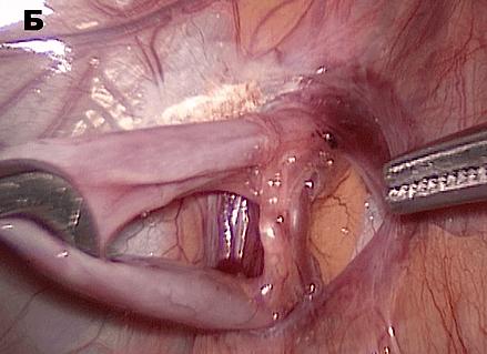 Микрохирургическая шунтирующая операция
