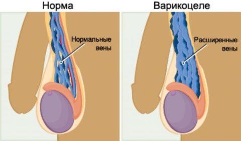 Схематическое изображение нормальных яичковых вен и пораженных варикозом