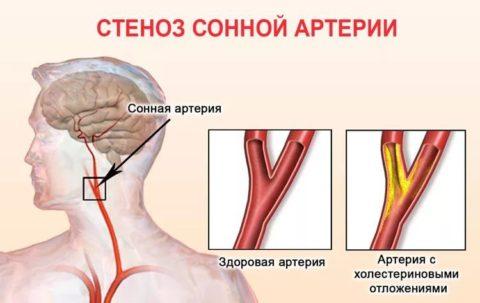 Сужение сосудов шейного отдела позвоночника