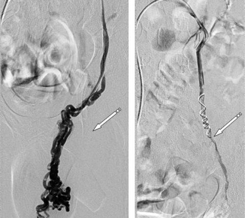 Варикоцеле до начала и после лечения