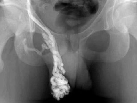 Воспаленные вены семенного канатика на рентгене до оперативного лечения