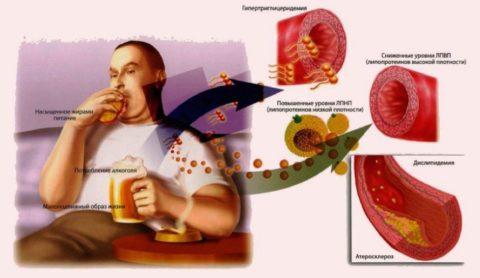 Атеросклероз развивается на фоне неправильного питания