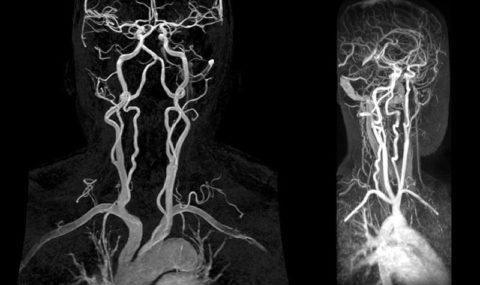 МРТ головного мозга и сосудов шеи (с контрастом)