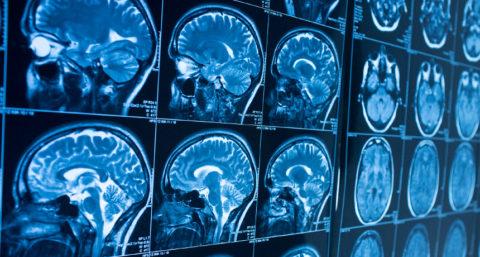 Снимок головного мозга в разных проекциях