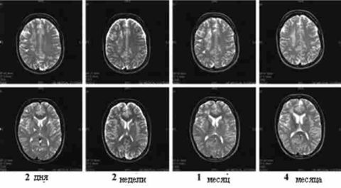 Рассеянный склероз ГМ (фото, сделанное при помощи МРТ)
