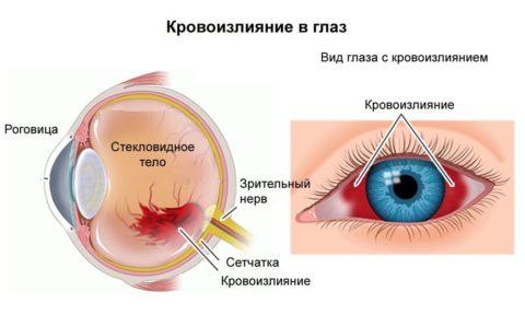 Разрыв внутренних сосудов глаза