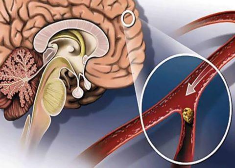 Закупорка кровеносного сосуда в головном мозге
