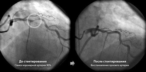 Фото кровеносных сосудов до и после стентирования