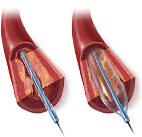Жизнь после стентирования коронарных сосудов сердца