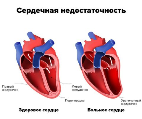 Сердечная недостаточность – диагноз, который часто встречается у пожилых людей