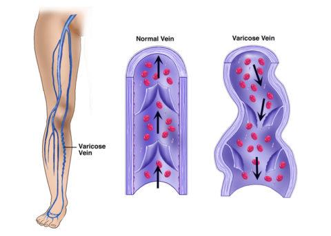 Причина деформации вен при варикозном расширении состоит в несостоятельности венозных клапанов