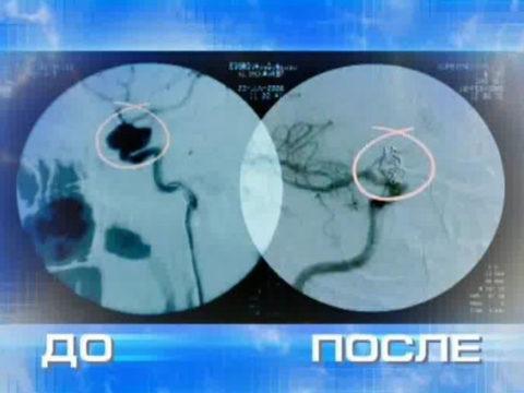 Результаты стентирования аневризмы сосудов головного мозга