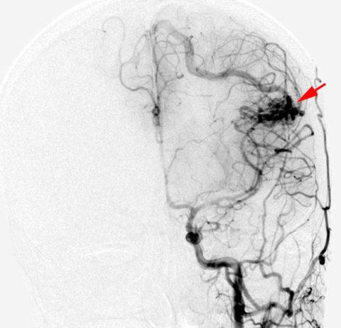 avm pri karotidnoy angiografii - Васкуларни малформации на мозочните видови симптоми третман дијагноза