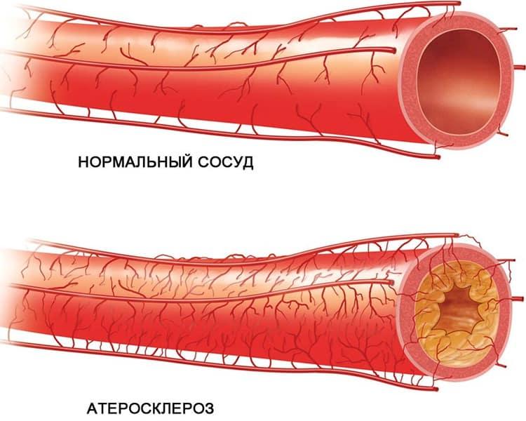 Атеросклеротические поражения кровеносных сосудов пениса – одна из причин эректильной дисфункции и ослабления потенции