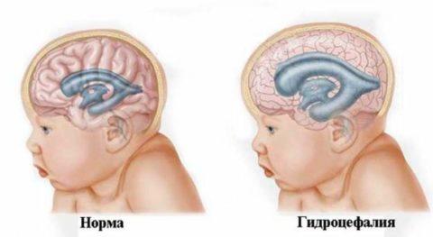 Гидроцефалия – одно из негативных последствий нарушения целостности аневризмы ГМ