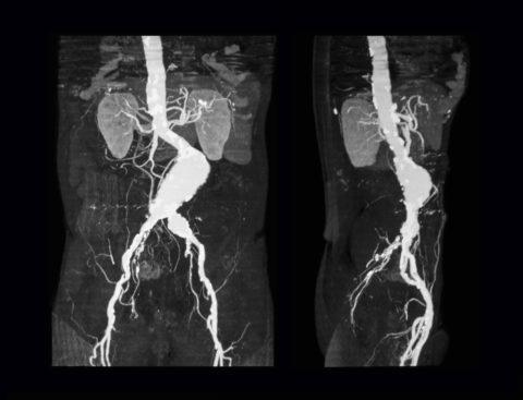 Аневризма аорты на КТ-снимке