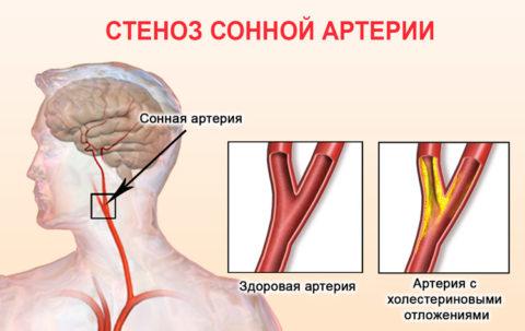 Атеросклеротическое поражение сонной артерии