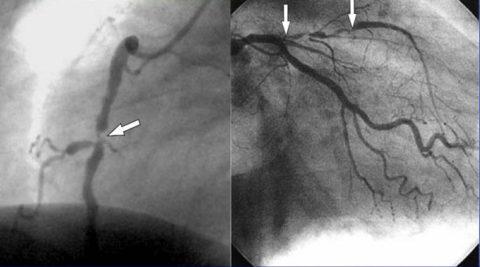 Фотоизображение сердечных сосудов, полученное при коронарографии
