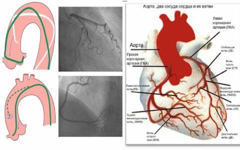Подведение катетера через бедренную артерию в коронарные артерии