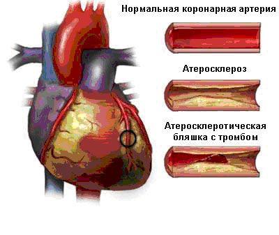 При атеросклерозе