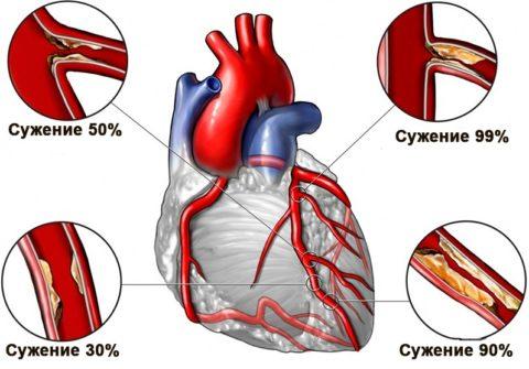 Признаки закупорки сердечных артерий.