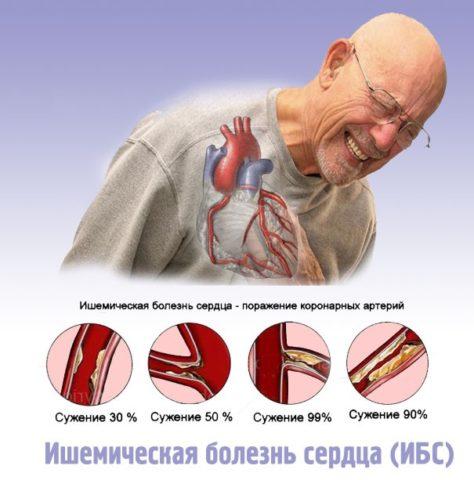 Уточнение диагноза ИБС